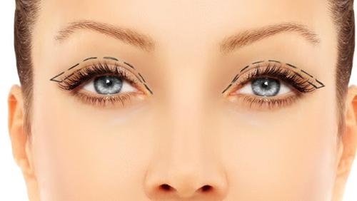 PlexXar veitsetön silmäluomien kohotus