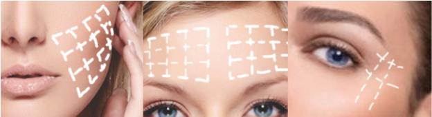 3D ja 4D mesolanka-hoitojen alueet: poski, otsa, silmäkulma