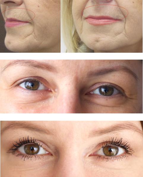 PlexXar veitsetön silmäluomien kohotus, ennen ja jälkeen hoitoa